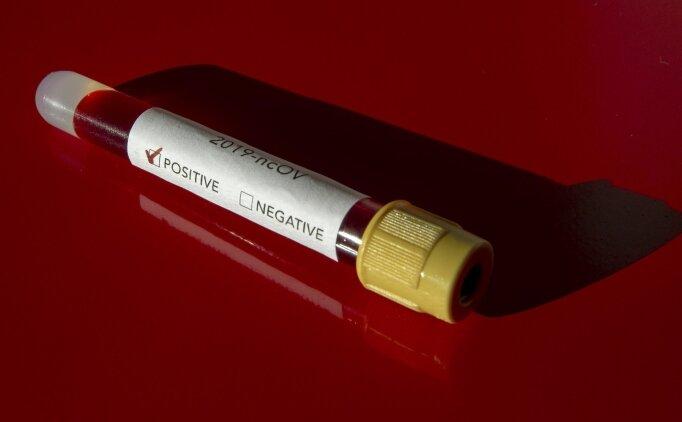 Muğlaspor teknik direktörünün koronavirüs testi pozitif