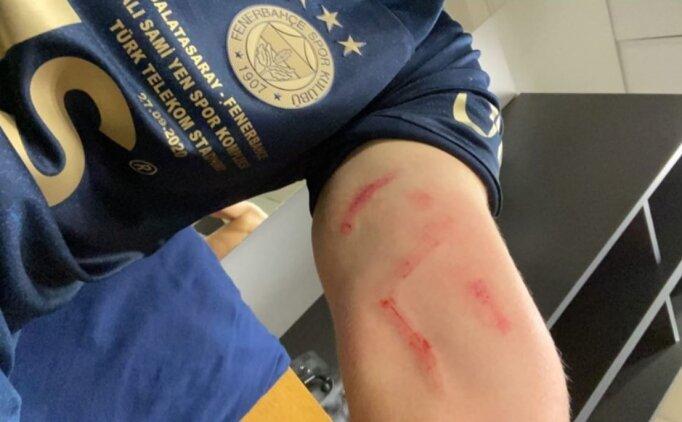 Ferdi Kadıoğlu, yara içindeki kolunu paylaştı