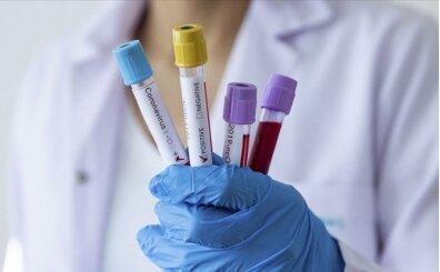 Gençlerbirliği'nde Kovid-19 testleri negatif çıktı